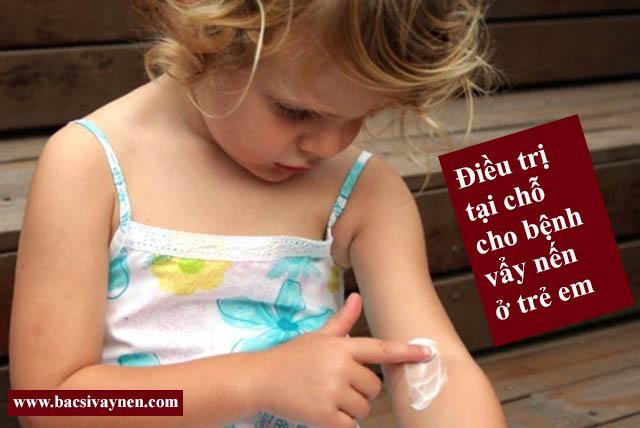 Trị bệnh vẩy nến ở trẻ em bằng thuốc bôi