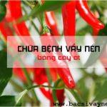 chữa bệnh vẩy nến bằng cây ớt