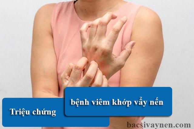 Triệu chứng bệnh viêm khớp vẩy nến