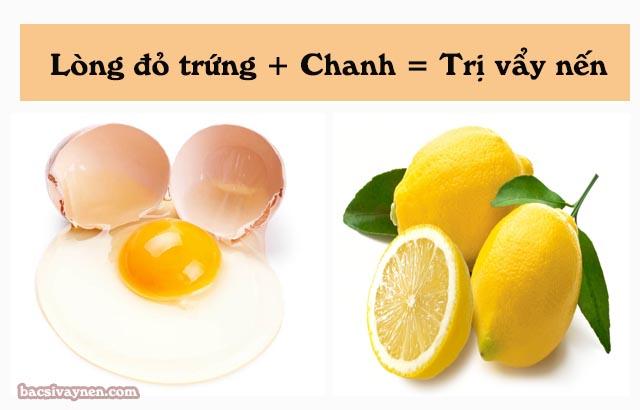 trị vẩy nến bằng trứng và chanh