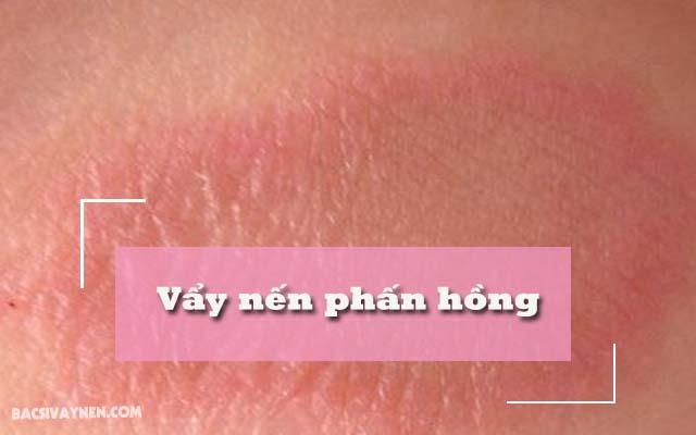 các giai đoạn của vẩy nến phấn hồng